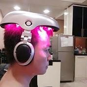 iGrow Laser Penumbuh Rambut Botak
